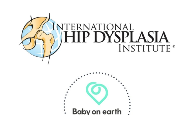 international displasia baby on earth